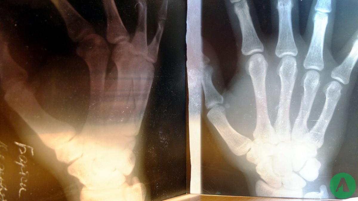 szpital rentgen kirgistan